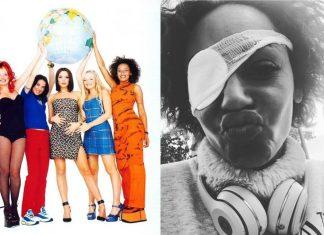 Scena dla Spice Girls już gotowa! Co z Mel B, która straciła wzrok?!